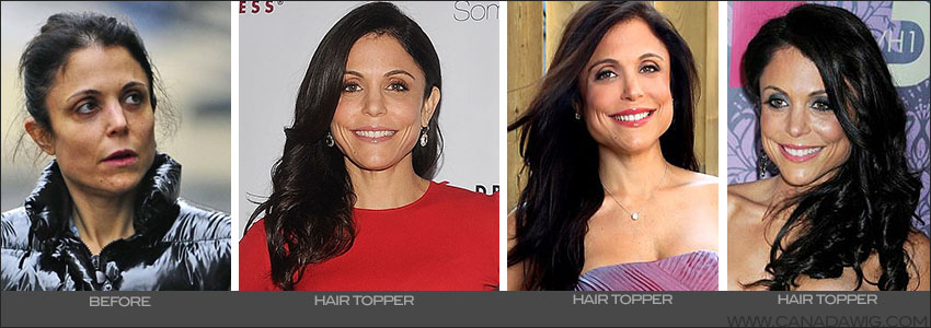Bethenny Frankel Hair Loss - Canada Wigs & Hair Toppers