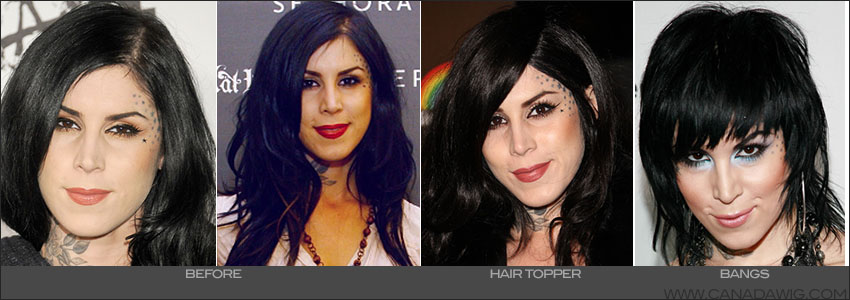 Kat Von D Thinning Hair Before & After