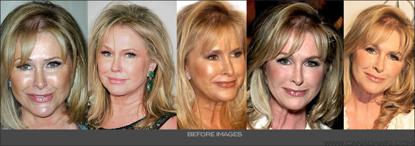 Kathy Hilton American actress, fashion designer and philanthropist suffers from hair loss