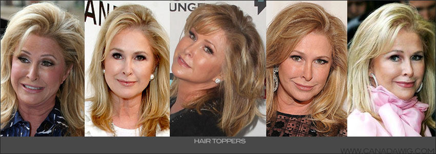 Kathy Hilton's Thinning Hair | Canada Wigs Toppers, & Hair Additions