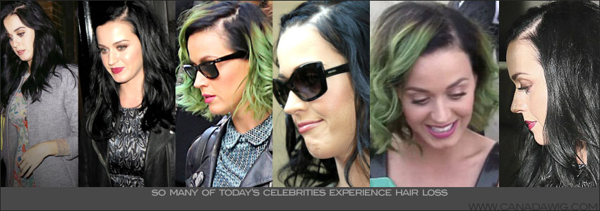 Katy Perry's Hair Loss - More younger women are losing their hair